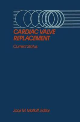 Cardiac Valve Replacement